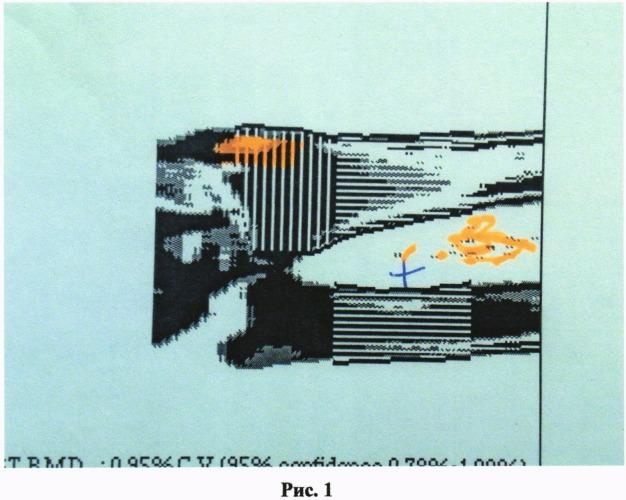 Способ и препарат для профилактики и лечения атипичного остеопороза с нормальной или повышенной минерализацией костной ткани с наличием полостных образований в трабекулярных отделах костей (и ему близких состояниях при избыточной массе и метаболическом синдроме)