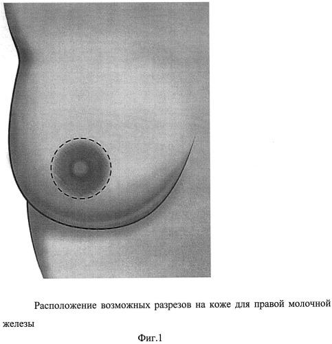 Способ формирования кармана для имплантата в двойственной плоскости при аугментационной маммопластике