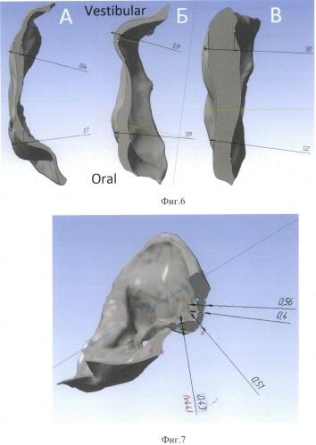 Способ оценки перемещений зубов в процессе лечения