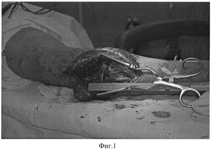 Способ замещения дефекта периферического нерва