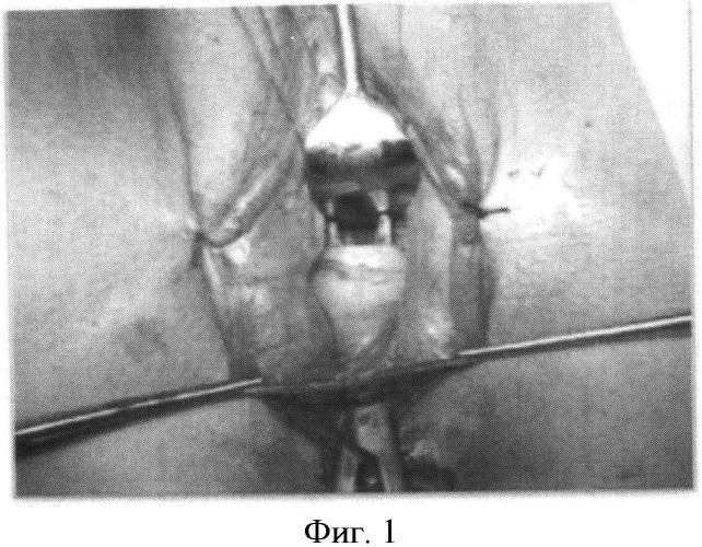 Способ хирургического лечения опущения задней стенки влагалища у женщин, живущих половой жизнью