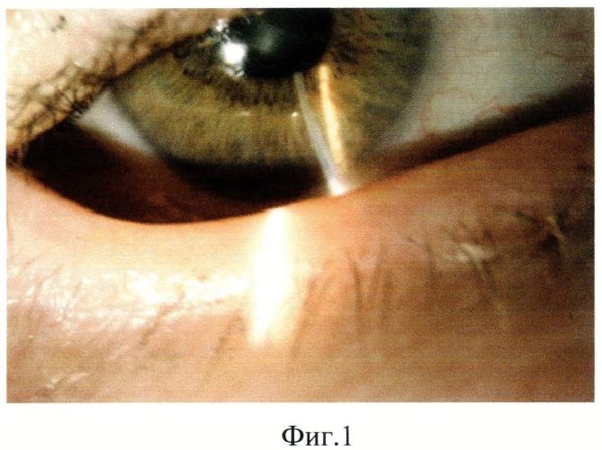 Способ определения степени блефароконъюнктивальной формы синдрома сухого глаза