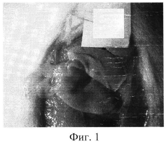 Средство для лечения язвенных поражений слизистой оболочки желудка