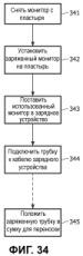 Система контроля экг с беспроводной связью