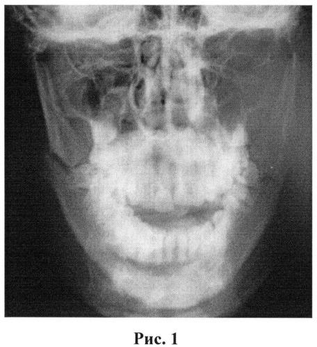 Способ одномоментного оперативного лечения двустороннего перелома нижней челюсти и нижнечелюстной макрогнатии