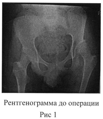 Способ остеотомии таза при лечении дисплазии вертлужной впадины у детей с дцп