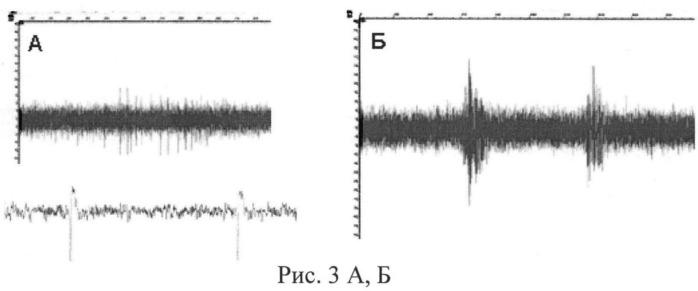 Способ оценки морфофункционального состояния диференцированных в дофаминергические нейроны индуцированных плюрипотентных стволовых клеток больных паркинсонизмом