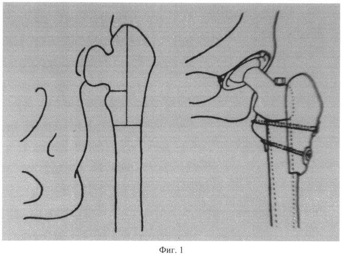 Способ остеотомии проксимального конца бедренной кости для установки и фиксации бедренного компонента эндопротеза тазобедренного сустава при врожденном высоком вывихе бедра