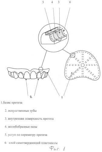 Способ перебазировки съемного зубного протеза