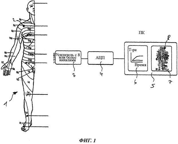 Устройство и способ контроля результата спинальной анестезии