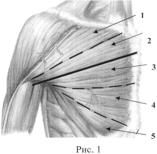 Способ восстановления активного сгибания предплечья у больных с тяжелой формой артрогрипоза