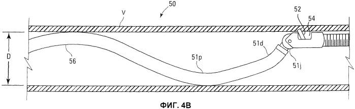 Устройства и способы манипулирования стержнем катетера