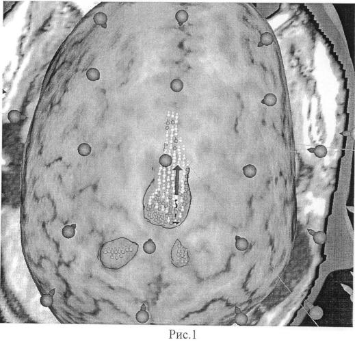 Способ выявления в коре головного мозга сенсомоторных зон, ответственных за локомоцию