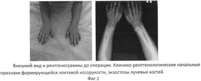 Хондродистрофия у детей фото