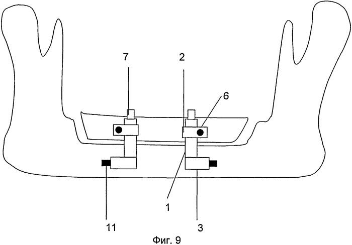 Дистракционный аппарат