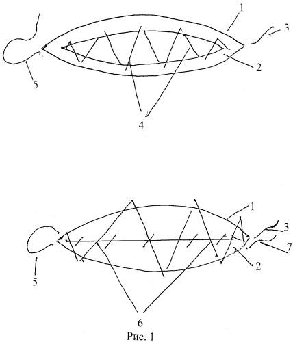 Способ наложения герметичного шва на операционный разрез конъюнктивы и теноновой капсулы глаза