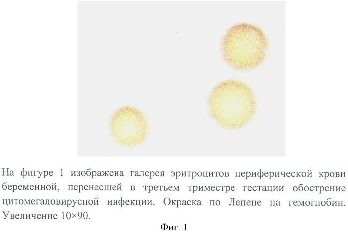 Способ оценки индуцирующего действия цитомегаловирусной инфекции на оксигенацию гемоглобина в третьем триместре гестации на фоне определения количества гемоглобина и 2,3 дфг в эритроцитах периферической крови