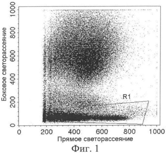 Способ оценки радиочувствительности рака верхних дыхательных путей