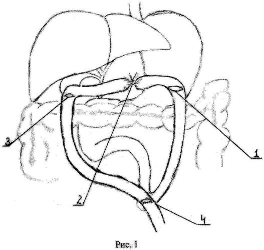 Способ хирургического лечения механической желтухи и дуоденальной непроходимости у больных с опухолями билиопанкреатодуоденальной зоны