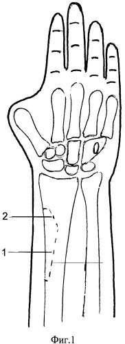 Способ профилактики перелома лучевой кости при пластике китайским лоскутом