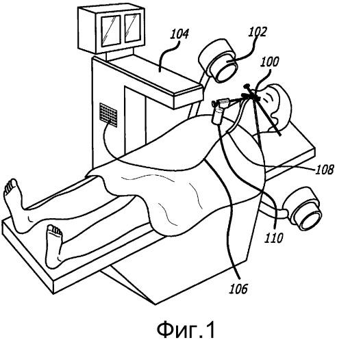 Способы и аппарат для лечения заболеваний уха, горла, носа