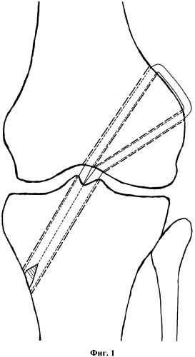 Способ пластики передней крестообразной связки коленного сустава у взрослых