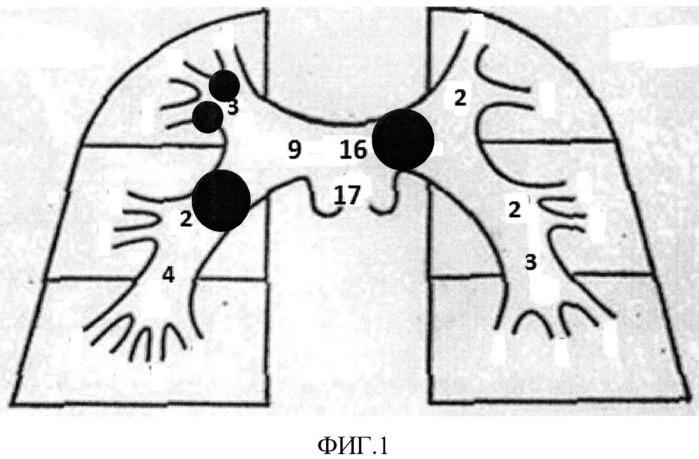 Способ ведения пациентов при тромбоэмболии легочной артерии