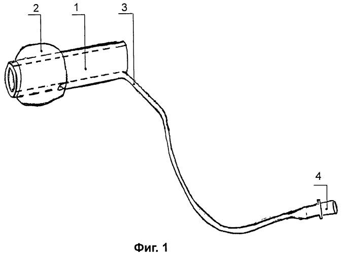 Способ динамического эндовидеоконтроля брюшной полости у больных с распространенным перитонитом и пневмообтюратор для его осуществления