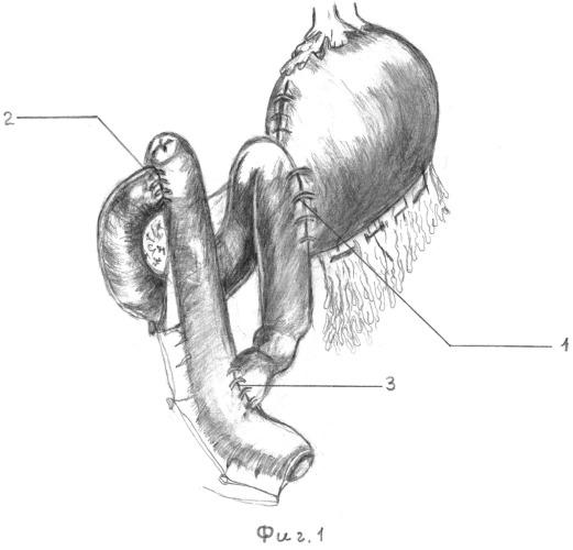 Способ оперативного пособия у больных для исключения пассажа пищевых масс по двенадцатиперстной кишке