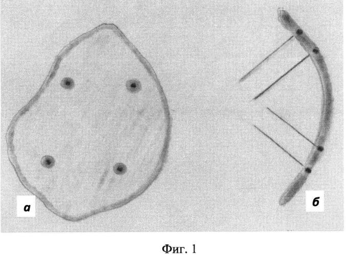 Способ имплантации хрящевой пластинки