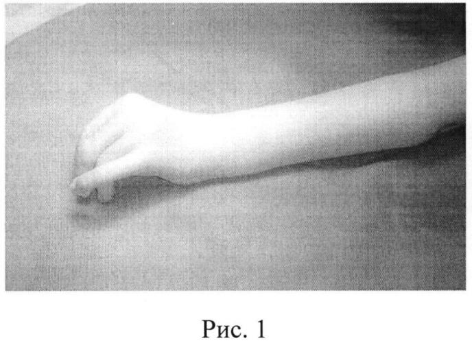 Способ лечения врожденной разгибательной контрактуры лучезапястного сустава у детей с артрогрипозом