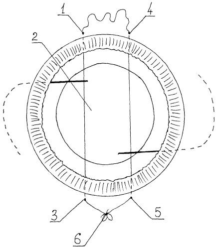 Способ репозиции и фиксации интраокулярной линзы при отсутствии капсулы хрусталика на глазах с травматическими дефектами радужки