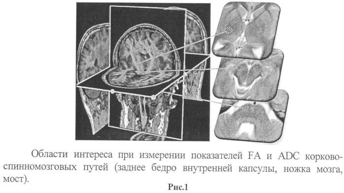 Способ прогнозирования восстановления двигательной функции у больных в остром периоде ишемического инсульта в бассейне артерий каротидной системы