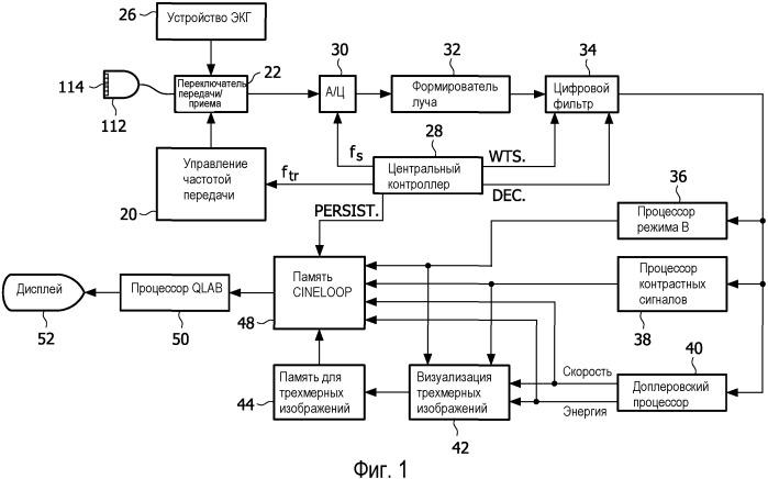 Ультразвуковая оценка сердечной синхронности и жизнеспособности