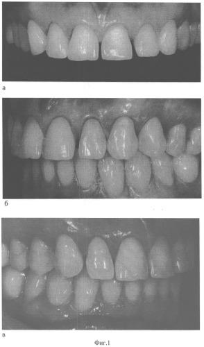 Способ щадящего протезирования адгезионными полукоронками