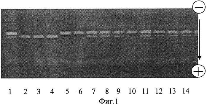 Способ прогнозирования риска развития тромбоцитопении в течении хронического лимфолейкоза