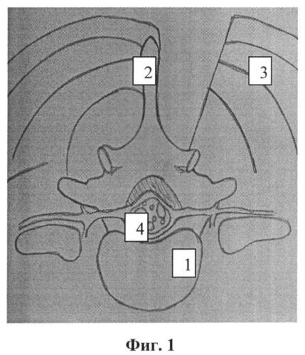 Способ доступа к позвоночному каналу при стенозирующем поражении пояснично-крестцового отдела позвоночника
