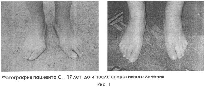 Способ лечения вальгусной деформации первого пальца стопы