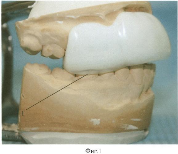 Индивидуальная спортивная зубная шина