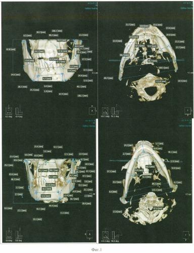 Способ идентификации личности человека методом компьютерной томографии (кт)