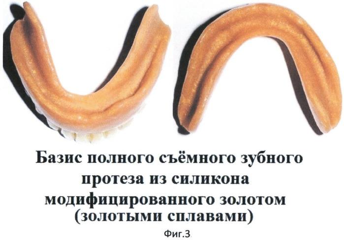 Способ модификации базисных материалов из акриловых пластмасс или силиконов для съемных зубных протезов, обтураторов и компонентов челюстно-лицевых протезов золотом и золотыми сплавами