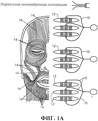 Система и способ стимуляции лицевого нерва