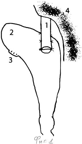 Способ профилактики несостоятельности внутри-плеврального пищеводного анастомоза