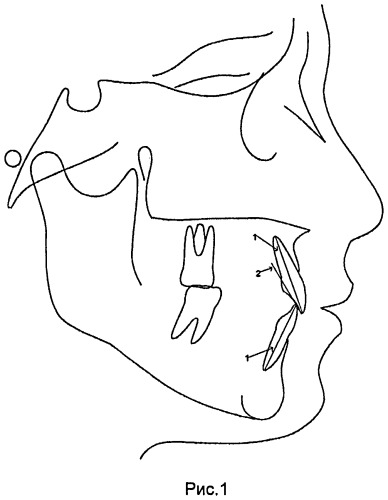 Способ диагностики нарушения артикуляции нижней челюсти с учетом анализа топографии небных поверхностей направляющих зубов (варианты)
