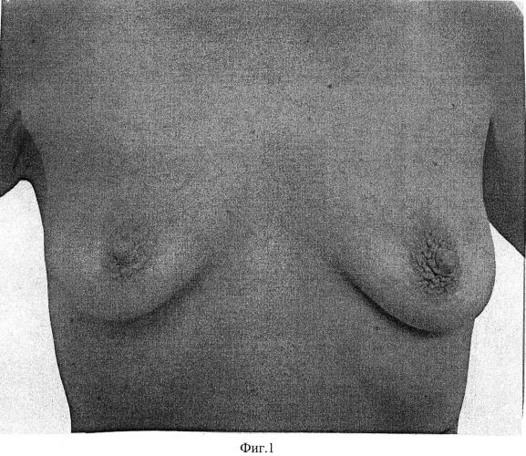 Способ хирургической коррекции молочных желез при птозе