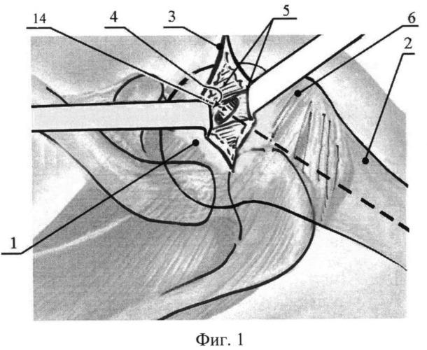 Способ репозиции отломков при закрытом интрамедуллярном остеосинтезе переломов шейки плечевой кости