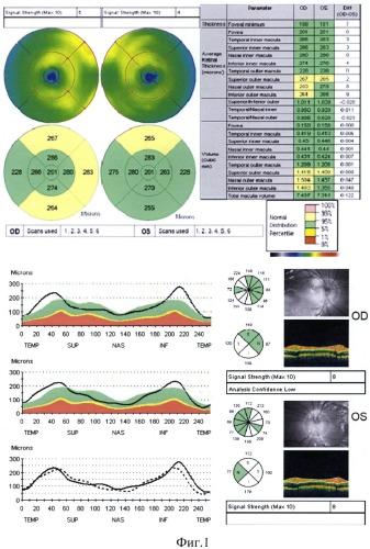 Способ диагностики наследственной оптической нейропатии лебера