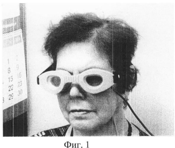 Способ лечения воспалительных состояний переднего отрезка глаза