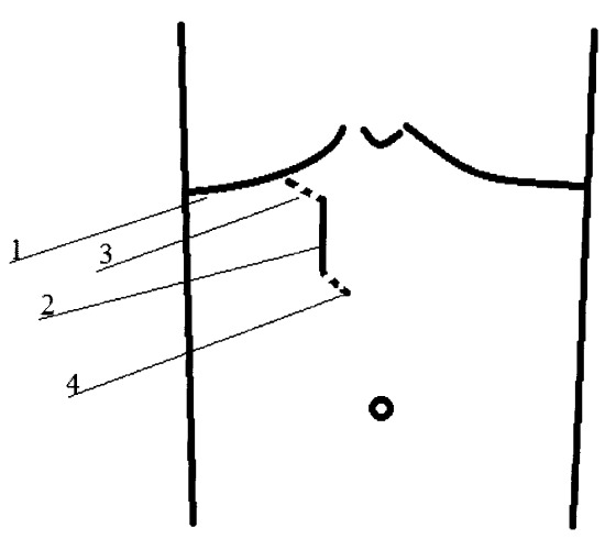 Способ минидоступа к желчному пузырю и внепеченочным желчным протокам