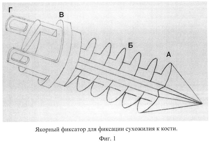 Способ и устройство для хирургической коррекции поперечной распластанности переднего отдела стопы